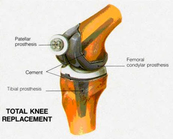 About Total Knee Replacements on knee cap diagram