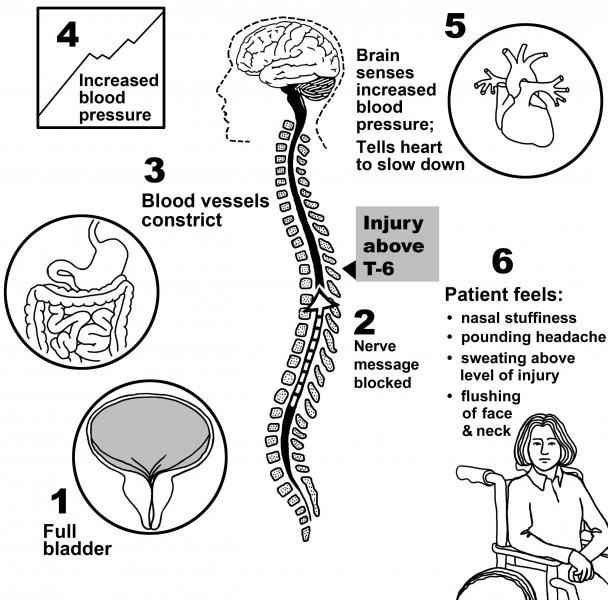 How do spinal cord injuries affect the body? | University of