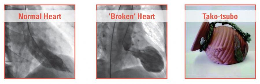 broken heart syndrome images