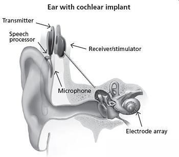 illustration of cochlear implant and inner ear