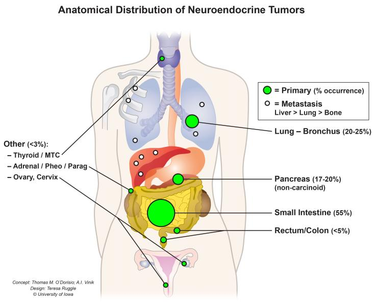 Illustration of the anatomical distribution of neuroendocrine tumors