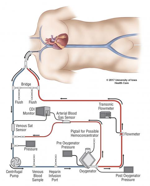 The ECMO circuit illustrated