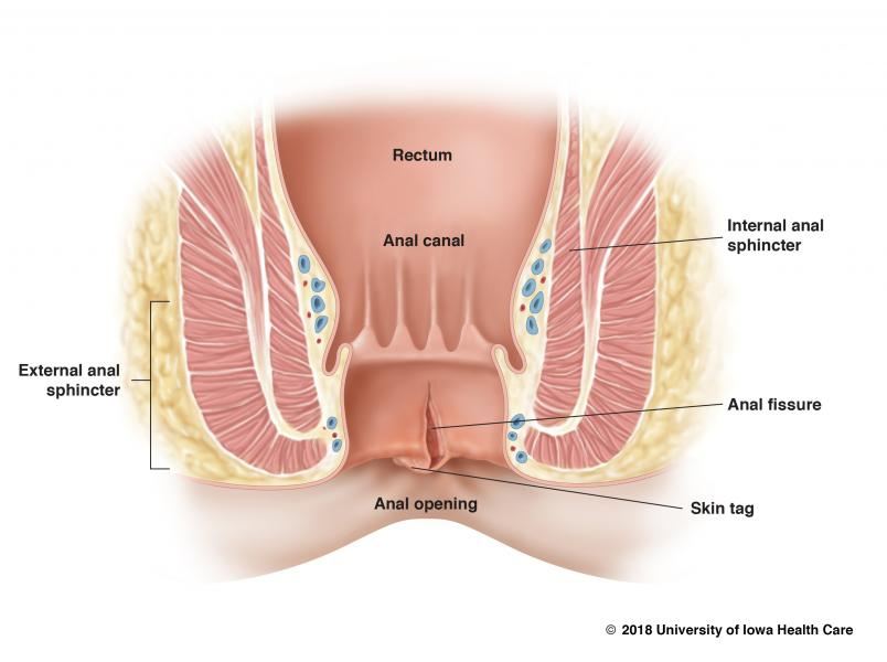 Causes of throbbing in anus