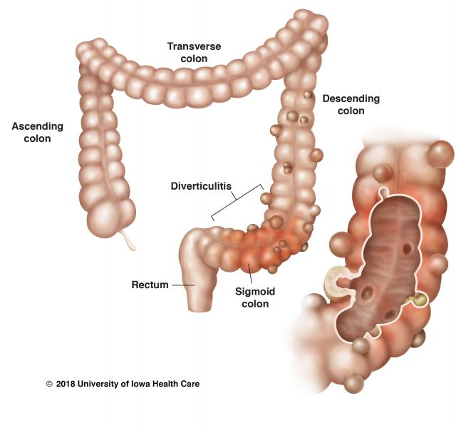 Illustration of diverticular disease