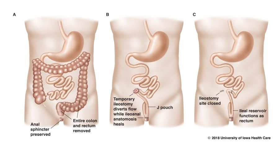 illustrations showing steps in removing colon