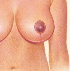 Breast Reduction 03