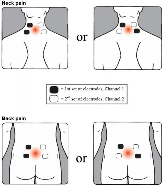 Illustration of sensor placement on neck and back