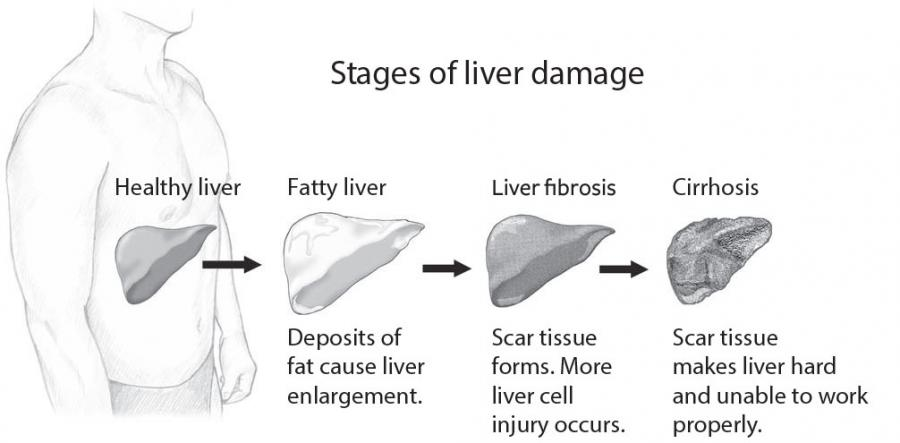 Silent liver disease non alcoholic fatty liver disease are you at risk for non alcoholic fatty liver disease ccuart Gallery
