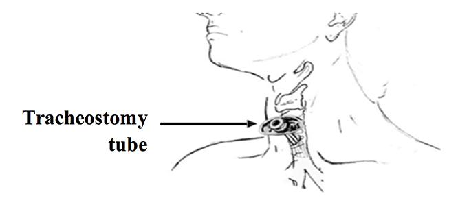 Placement of a trach tube