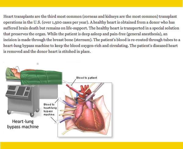 Heart transplant the transplant hospital stay transplant center day of surgery ccuart Choice Image
